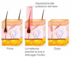 Come funziona il laser al diodo