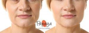 miglior trattamento viso risultati immediati microcorrenti