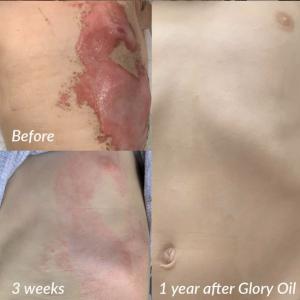 Glory Oil 1